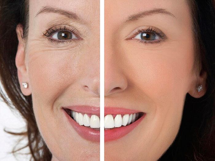 После 40 лет крем для лица должен иметь хороший антивозрастной эффект